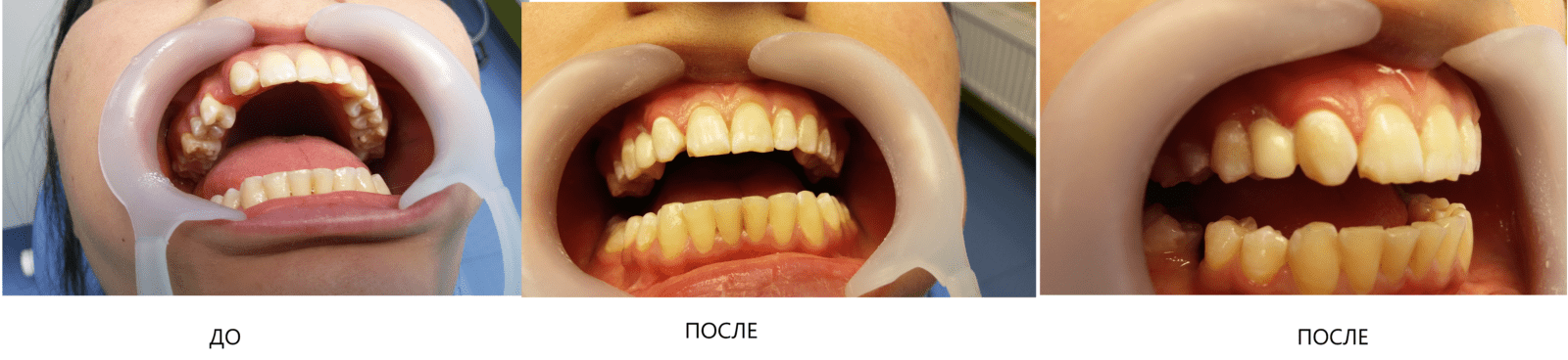 Восстановление отсутствующего 13 зуба в одно посещение