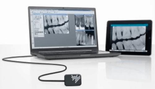 alt: компьютерная рентгенодиагностика зубов.